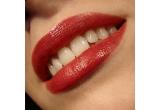 un tratament de albire a dintilor oferit de Modern Dentistry, Bucuresti<br />